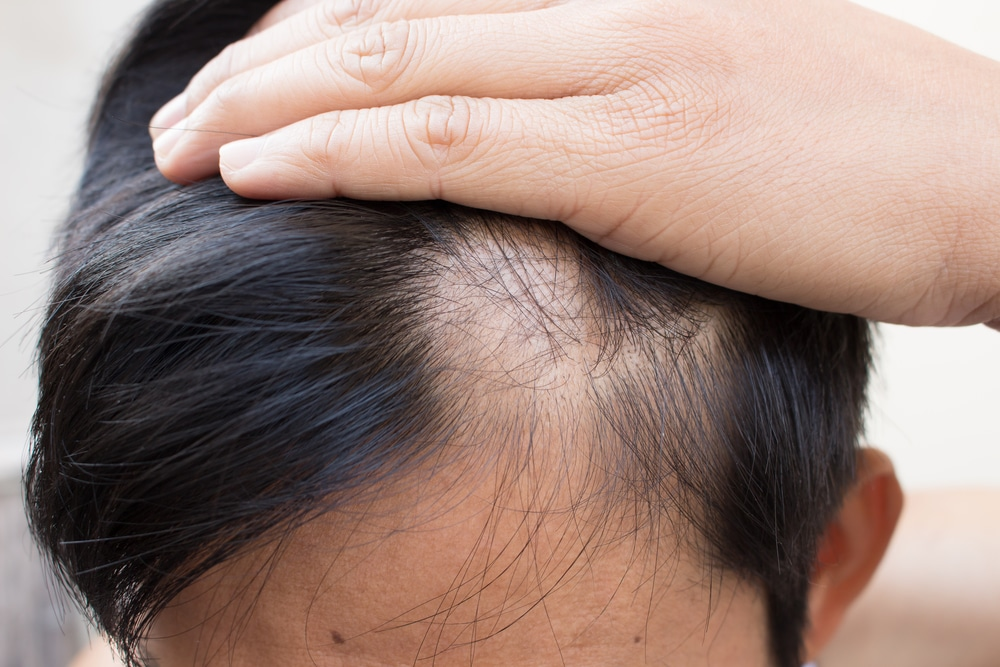 Man with dark hair examining a bald spot, possibly due to hormonal hair loss.